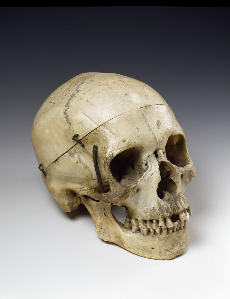 This human skull was given to the French actress Sarah Bernhardt (1844-1923) by the novelist Victor Hugo, after she triumphed in his historical drama Hernani in 1877 © Victoria and Albert Museum, London